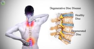 Degenerative Disc Disease
