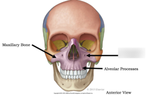 Maxillomandibular Surgery and TMJ Pain