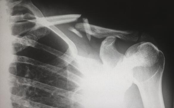 Separovic Injury Lawyers X-ray of Broken Shoulder