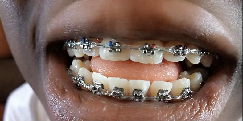 BRACES! by Grant Golding