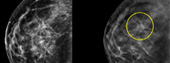 Hologic Announces Study: 3D Mammography Significantly Increases the Detection of Breast Cancer