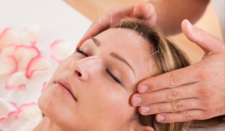 Drifting to Restful Sleep with Acupuncture