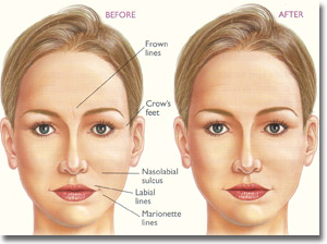 Dermal Fillers - Injections