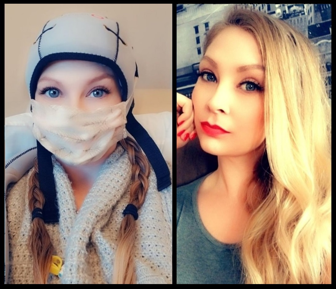Keeping her hair during chemo helps one breast cancer patient feel 'in control'