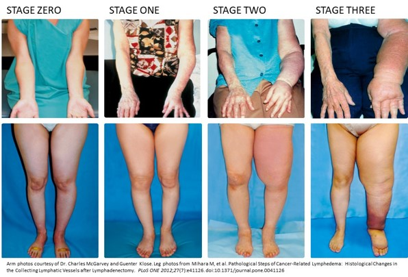 One in Three At-Risk Cancer Patients Develop Lymphedema, But It's Not Inevitable