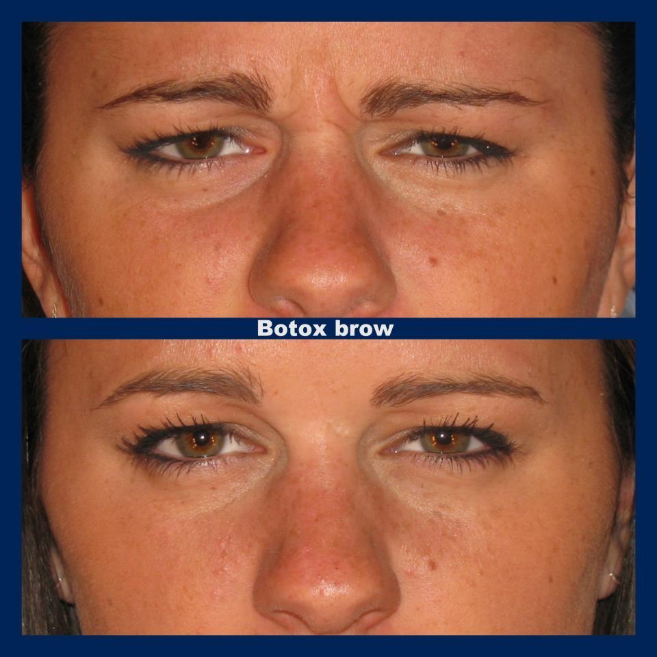 5 Incredible Uses for Botox