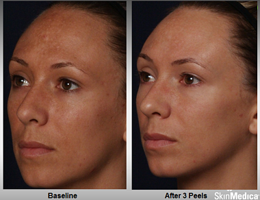 rejuvenize_case_1_after_3_peels