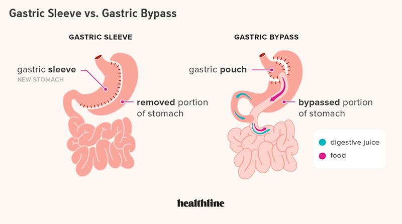 Gastric Bypass vs. Gastric Sleeve Comparison