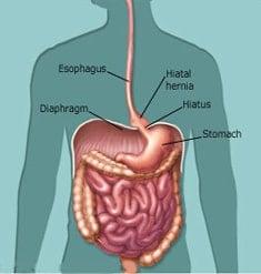 hiatal hernia weight loss surgery